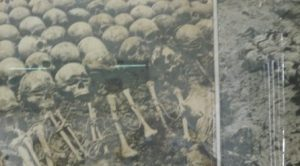 Odd cleft lip  palate skulls in the Killing Fields of Pol Pot.