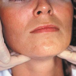 Checking the face for oral cancer signs.
