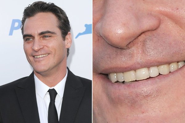 Peyton Manning Cleft Palate and Orthodontics