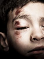 XCU bruised face of physical child abuse victim.