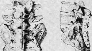 Plates to fuse vertebrae. Appearances.